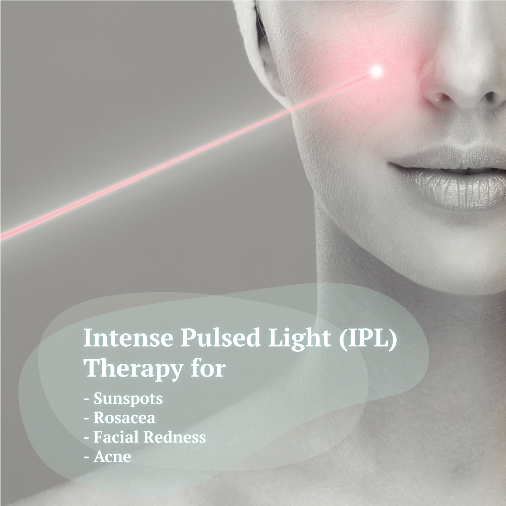 Intense Pulsed Light Adelaide